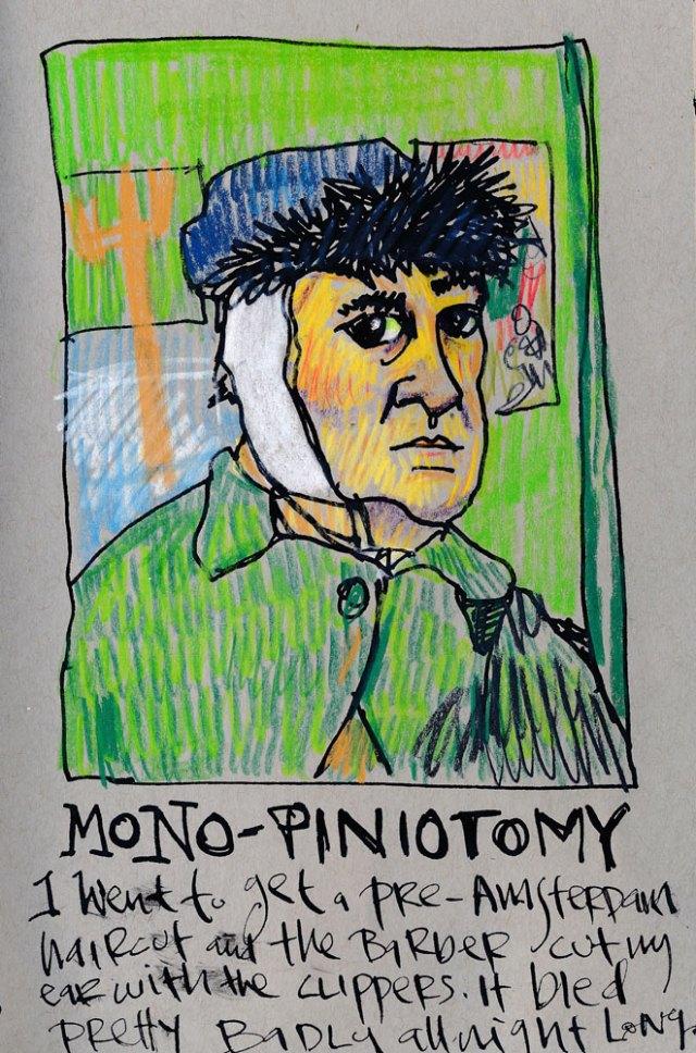 monopiniotomy